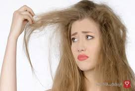 جلوگیری از ریزش مو